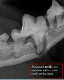 An x-ray of a tooth that shows a sever abscess